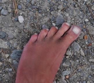 Entraînement Trail, Parc Lacroix-Laval : 18 km de terre et de cailloux, pieds nus. Aucune blessure, juste de la poussière !...